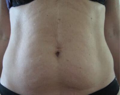 Before_Body_Female